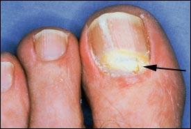 301 Moved Permanently Proximal Subungual Onychomycosis Treatment